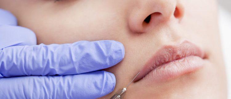 Lip Augmentation 1 750x430 750x321 - پروتز لب؛ ۹ نکته مهم که قبل از انجام پروتز لب باید بدانید